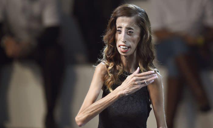リジー ベラスケス 病気 リジー・ベラスケス「世界一醜い」と呼ばれた女性の美しい話
